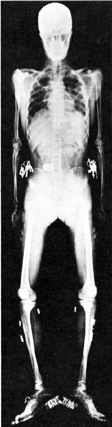 Одна из первых оригинальных пластинок Рентгена